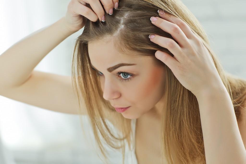 Lămâia elimină mătreața și hidratează părul